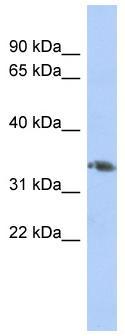 Western blot - HOXD10 antibody (ab90704)