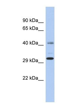 Western blot - C11ORF46 antibody (ab90711)