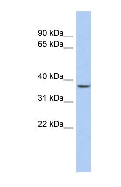 Western blot - FOXE3 antibody (ab90714)