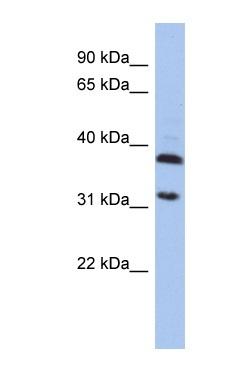 Western blot - ASPA antibody (ab90725)
