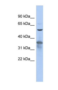 Western blot - RAB3IP antibody (ab90732)