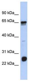 Western blot - C1orf103 antibody (ab90736)