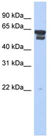 Western blot - BLMH antibody (ab90737)