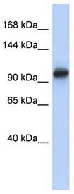 Western blot - VPS54 antibody (ab90738)