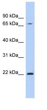 Western blot - RPS7 antibody (ab90821)