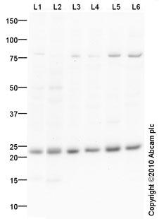 Western blot - PSMB5 antibody (ab90867)