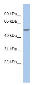 Western blot - DALRD3 antibody (ab90868)