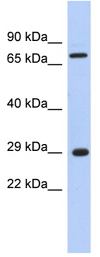 Western blot - FTS antibody (ab90870)