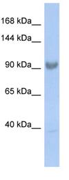 Western blot - SART3 antibody (ab90871)