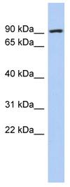 Western blot - P5CS antibody (ab90872)