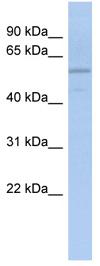 Western blot - ADPGK antibody (ab90875)