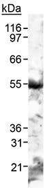 Western blot - Adipose Triglyceride Lipase antibody (ab90885)