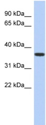 Western blot - MVK antibody (ab90888)