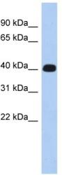 Western blot - ERMN antibody (ab90893)