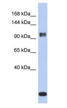 Western blot - Ataxin 7 antibody (ab90907)