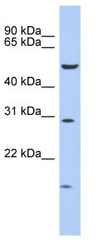 Western blot - HOXC5 antibody (ab90908)