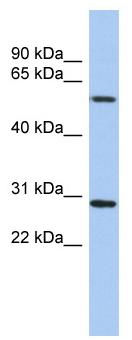 Western blot - TRIM38 antibody (ab90913)