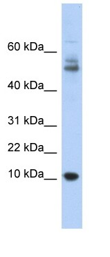 Western blot - Myotrophin antibody (ab90918)