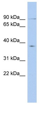 Western blot - KIF2B antibody (ab90919)