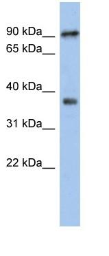 Western blot - RSPH10B antibody (ab90954)