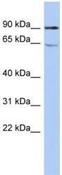 Western blot - RTKN antibody (ab90961)