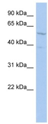 Western blot - CoREST antibody (ab90962)