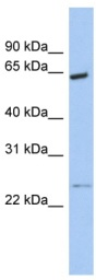 Western blot - PCTAIRE1 antibody (ab91001)