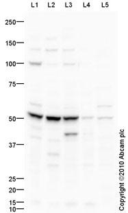 Western blot - CSAD antibody (ab91016)