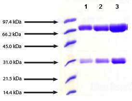 SDS-PAGE - IgD protein (Human) (ab91023)