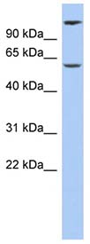 Western blot - CHRNA6 antibody (ab91036)