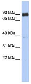 Western blot - CCDC157 antibody (ab91039)