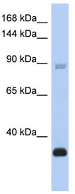 Western blot - Ctip2 antibody (ab91044)