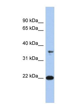 Western blot - FAIM1 antibody (ab91045)