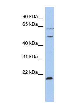Western blot - Proteasome 19S S7 antibody (ab91046)