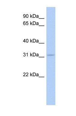 Western blot - GRG (Groucho homologue) antibody (ab91053)