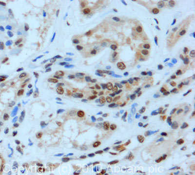 Immunohistochemistry (Formalin/PFA-fixed paraffin-embedded sections) - RRAGA + RRAGB antibody (ab91062)