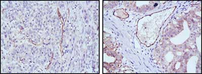 Immunohistochemistry (Formalin/PFA-fixed paraffin-embedded sections) - eNOS antibody [6H2] (ab91205)