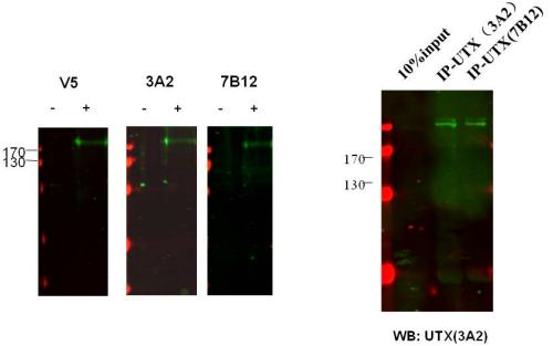 Western blot - KDM6A / UTX antibody [3A2] (ab91231)