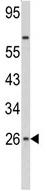 Western blot - Interferon beta antibody (ab91245)