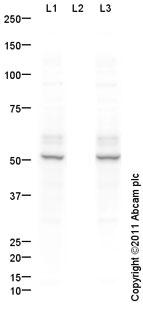Western blot - Anti-CaMKII alpha + CaMKII beta (phospho T286) antibody (ab91290)