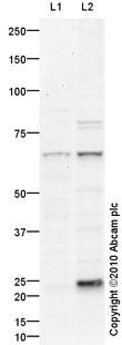 Western blot - Radixin antibody (ab91312)