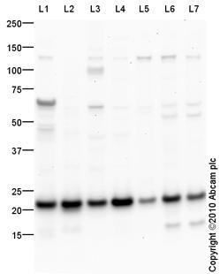 Western blot - Cytochrome C oxidase subunit II antibody (ab91317)