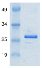 SDS-PAGE - MSRB3 protein (Active) (ab91344)