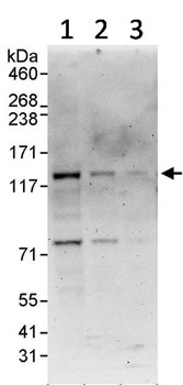 Western blot - RECQL5 antibody (ab91422)