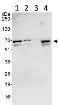 Western blot - PRMT3 antibody (ab91430)