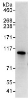 Immunoprecipitation - C13orf7 antibody (ab91464)