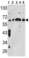 Western blot - CCT3 antibody (ab91473)