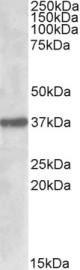 Western blot - SUMF1 antibody (ab91479)