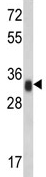 Western blot - Anti-HLA DR antibody (ab91488)