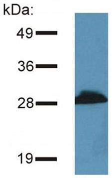 Western blot - PRR7 antibody [TRAP3/10] (ab91499)
